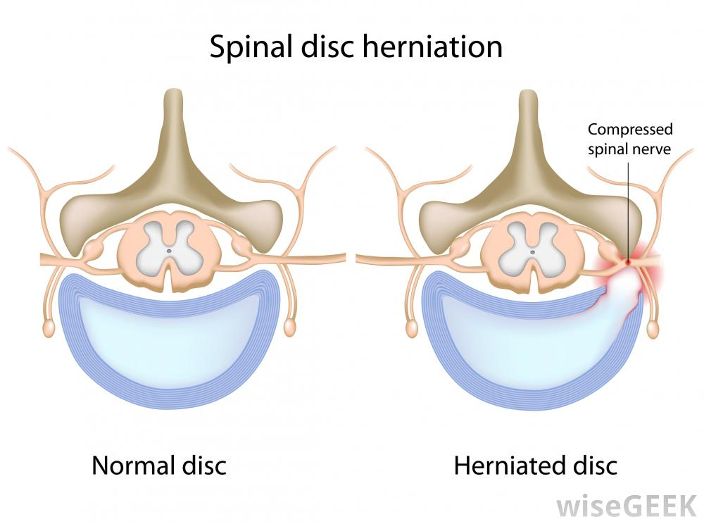 Disc herniation illustration