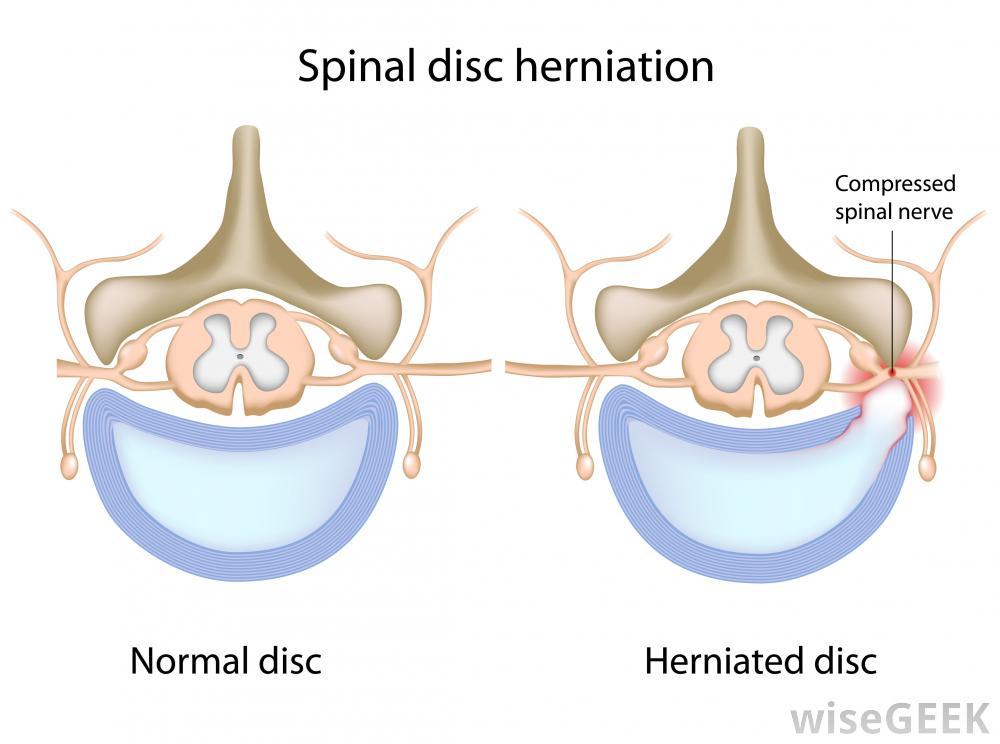 Disc herniation illustration