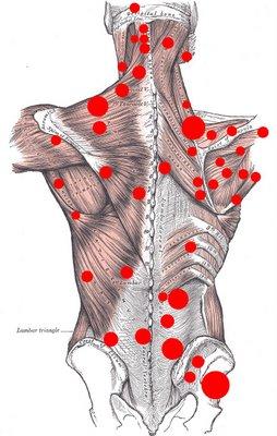 Back Spasm Location illustration