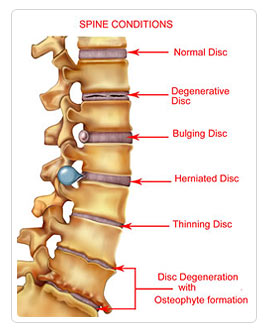 Spinal Conditions illustration