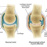 Rheumatism Definition