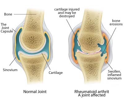 knee anatomy illustration