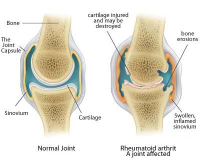 knee anatomy illustration