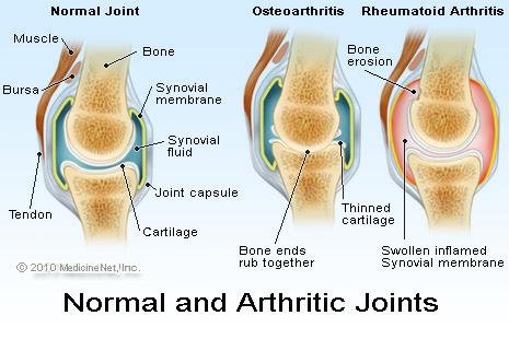 joints illustration