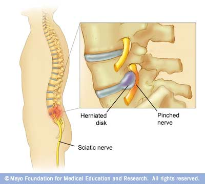 Nerve problems in the back