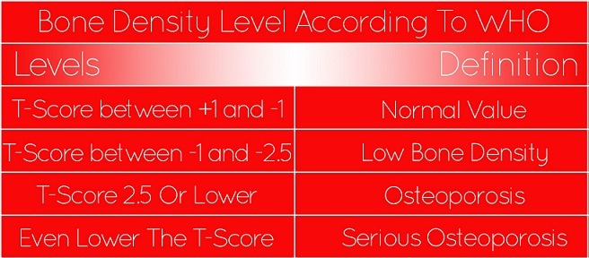 Bone Density Test values - Find Out Where You Rank Up