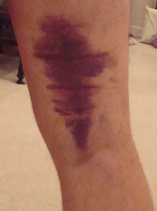 Hamstring-Bruise