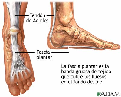 Causes foot pain in the morning