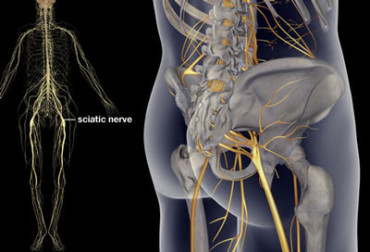 16 Ways To Get Natural Pain Relief From Sciatica!