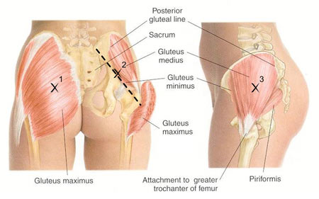 Piriformis-muscle---greater-trochanter-attachment