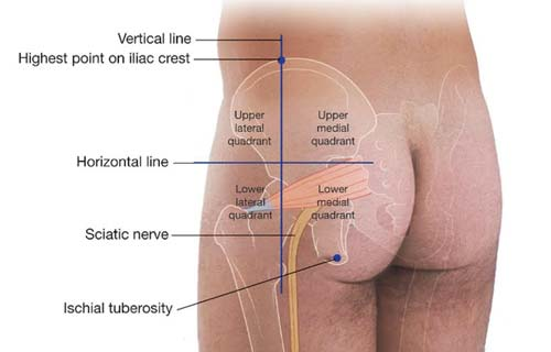 location of the iliac crest