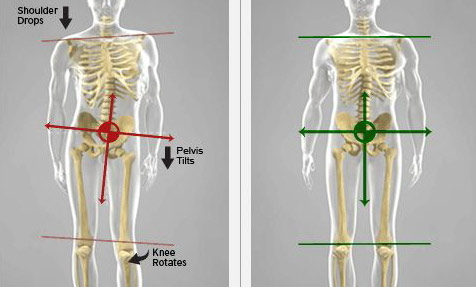 pelvis tilted laterally