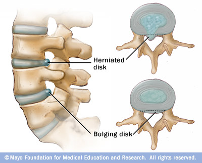 Herniated And Bulging Disc In Neck Anatomical Illustration