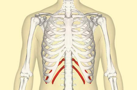 Floating Rib Syndrome Is Probably Causing Your Rib Pain