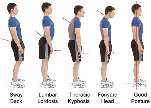[Image: Different-types-of-posture.jpg?x72215]