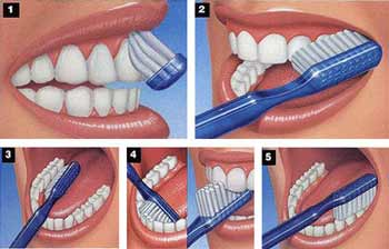 brushing-teeth-for-tonsil-stone-prevention