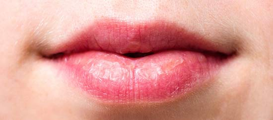 Dry, cracked and itchy female lips